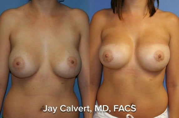 best breast lift surgeon