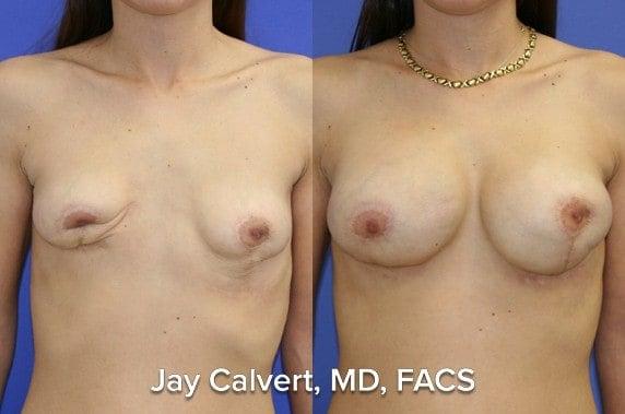 breast reconstruction los angeles