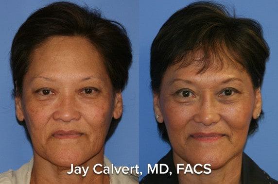 eyelid surgery beverly hills