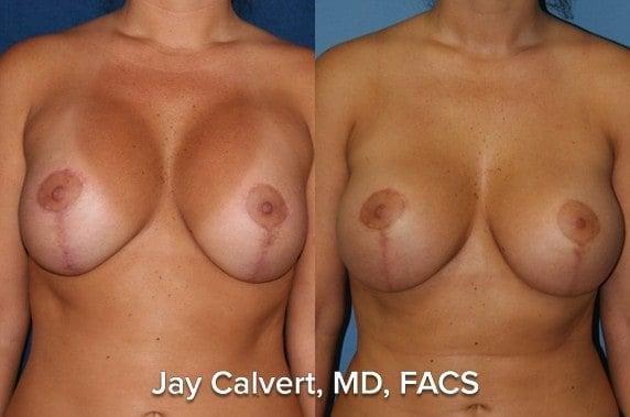 implant exchange surgery