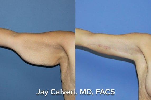 innerarms liposuction cost plastic surgeon los angeles
