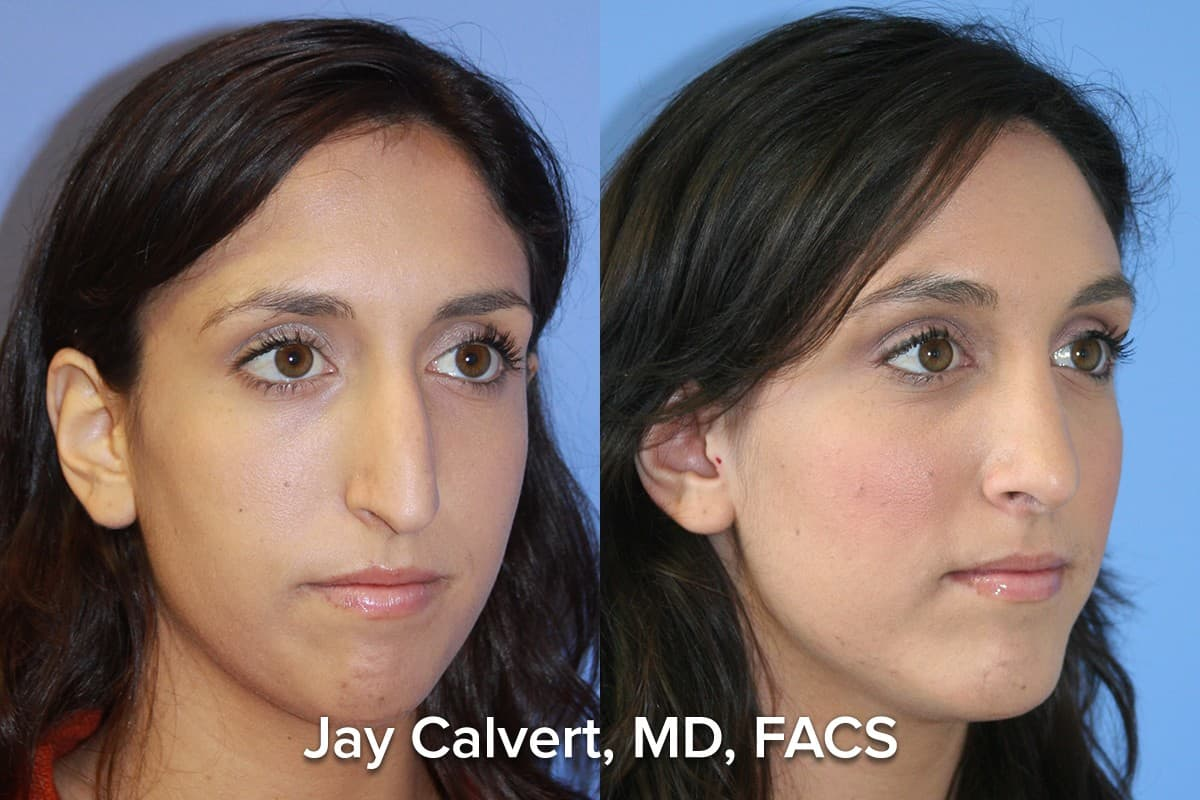 facial implants beverly hills primary rhinoplasty by dr jay calvert