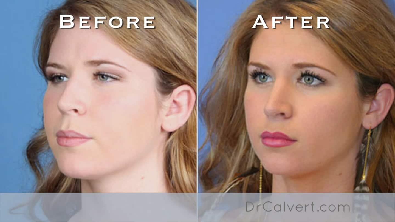 what is rhinoplasty dr jay calvert dr jay calvert
