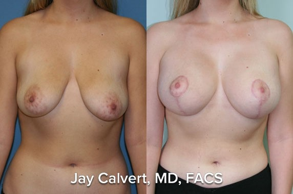 best breast lift surgeon los angeles