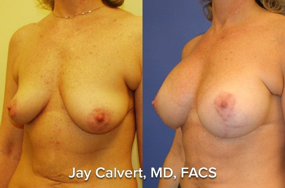 breast lift and augmentation results