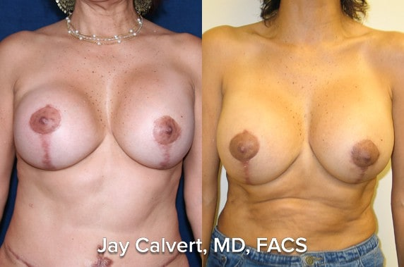 capsulectomy before an after bh