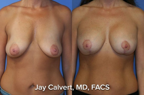 breast lift before and after results