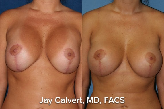 capsulectomy results photos