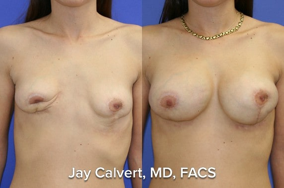 breast reconstruction before and afters beverly hills