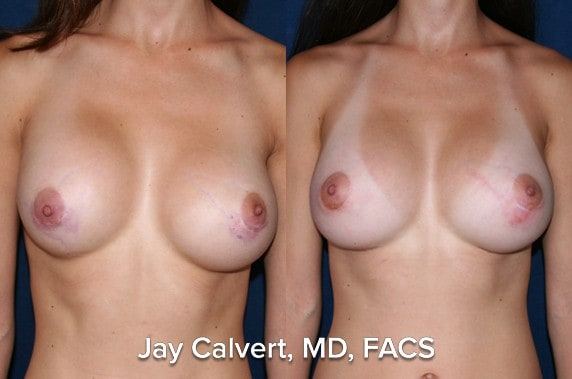 capsulectomy before an after newport beach