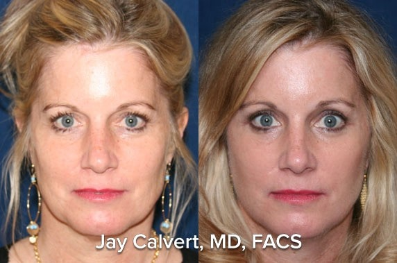 AP view of a Facelift Patient by Dr. Jay Calvert