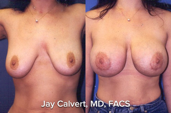 breast lift before and after bh