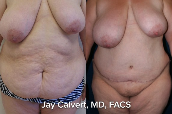 before and after tummy tuck pictures