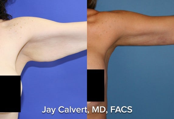 plastic surgery arms before and after