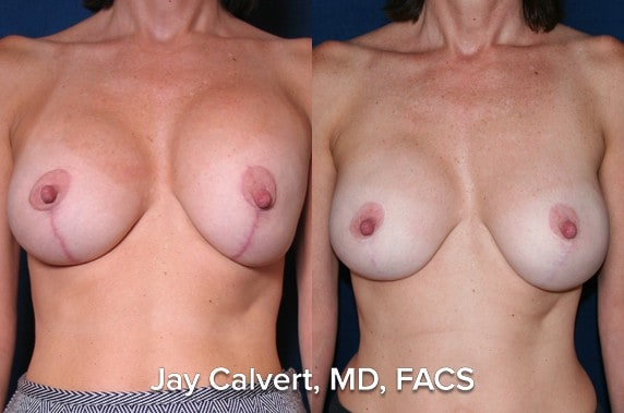 breast reconstruction photo results