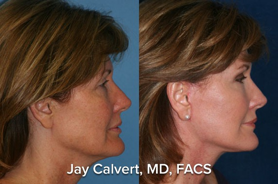 Facelift Before and After by Dr. Jay Calvert