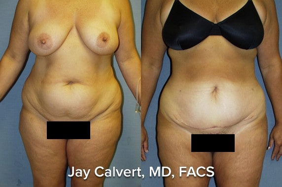stomach lipo before and after