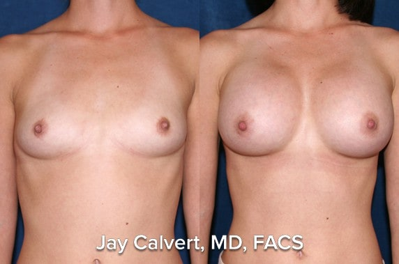 breast augmentation results in los angeles