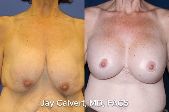 breast lift and augmentation before and afters in beverly hills