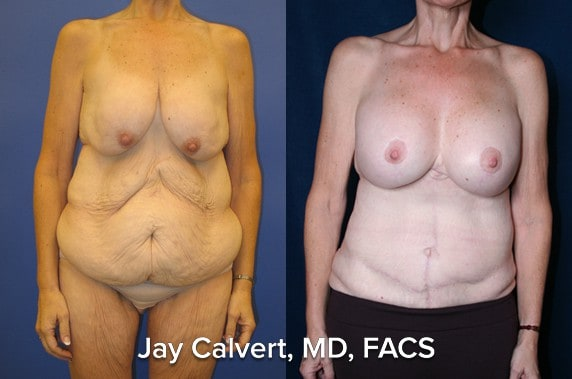 body lift with breast augmentation