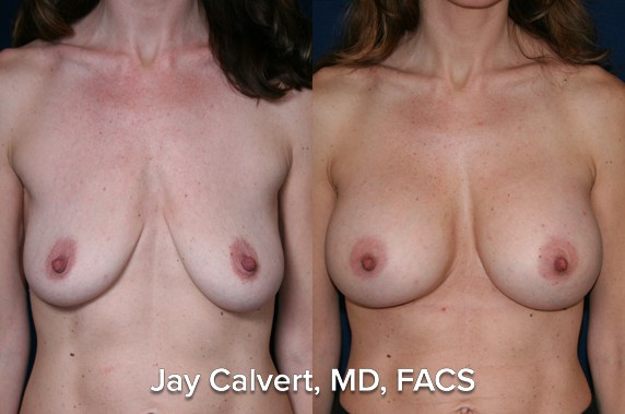 breast augmentation results gallery