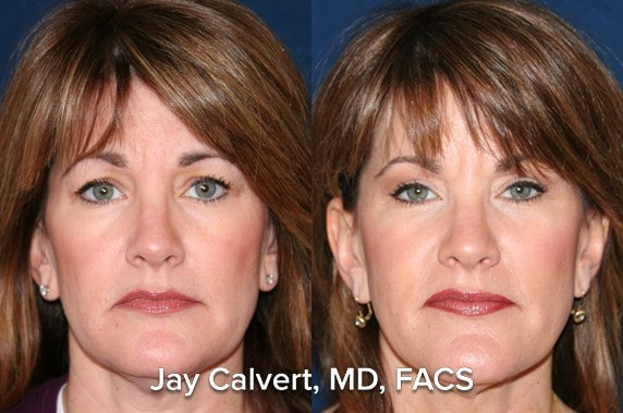 facelift before and after newport beach