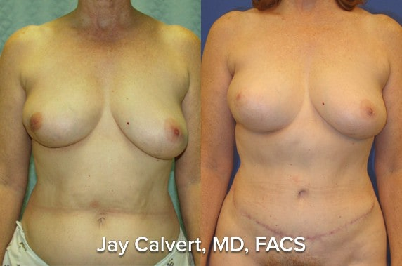 breast reconstruction photos