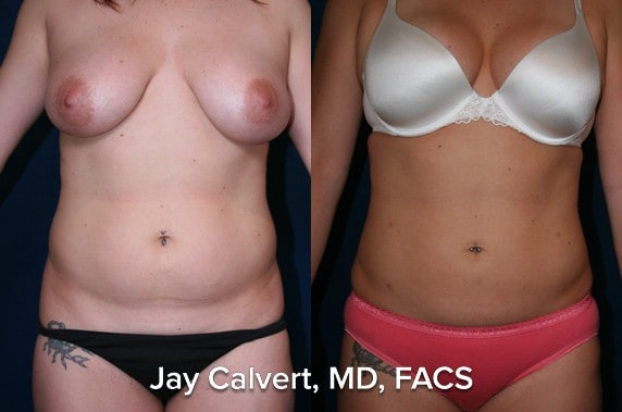 liposuction before and after female