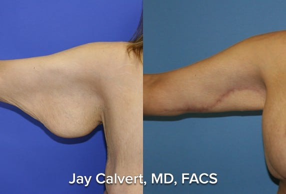 arm tuck before and after