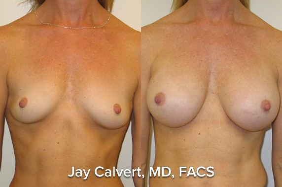 one year post op breast augmentation with silicone gel implants