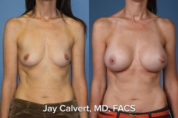 breast augmentation surgeon in beverly hills