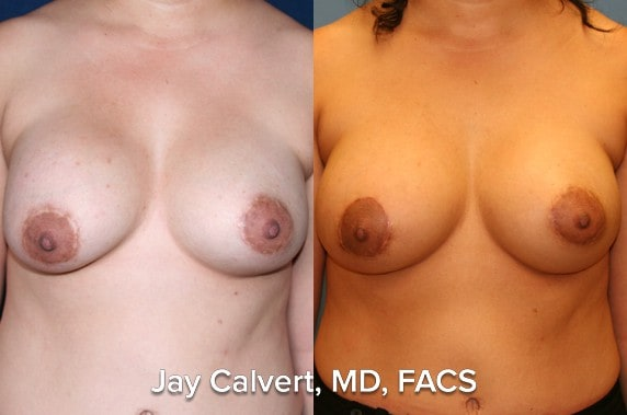 breast implant exchange photos