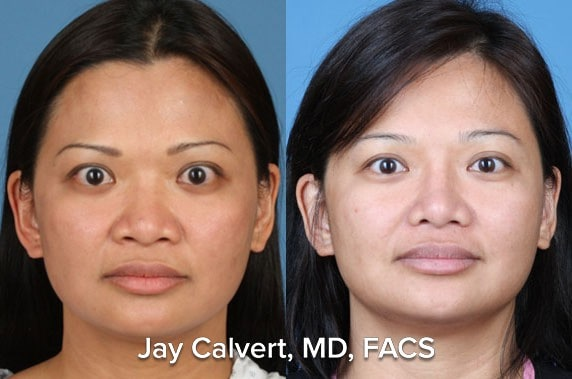Primary Asian Rhinoplasty with rib