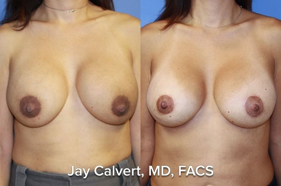 breast augmentation best surgeon in bh