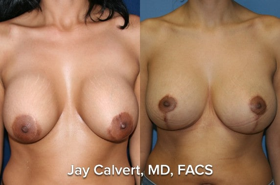newport beach breast lift results