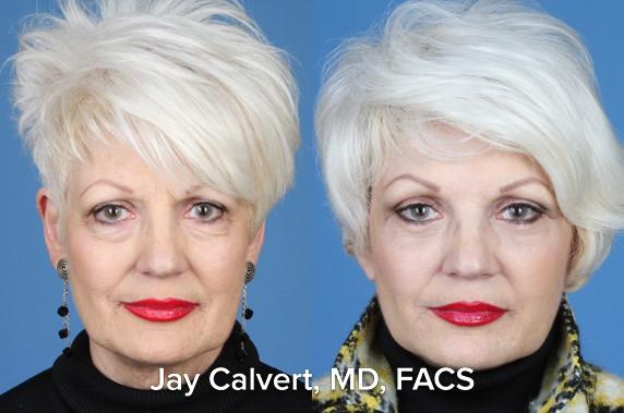 vectors in facelift surgery