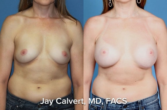 best breast augmentation images