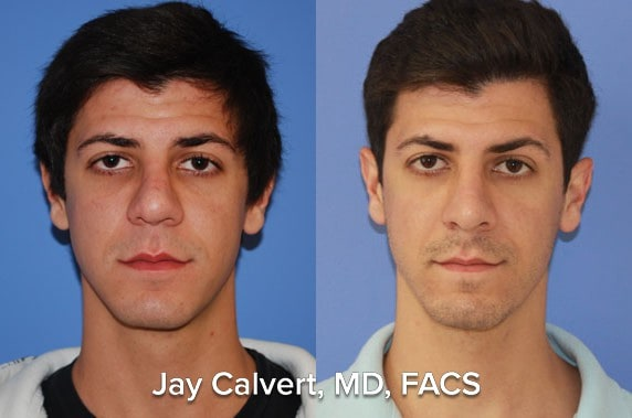 Revision rhinoplasty patient after LeFort 1 and Rhinoplasty combo case