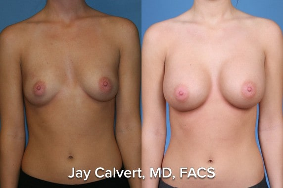 symmetrical breast augmentation results