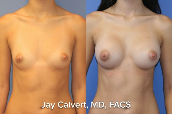 natural breast augmentation results