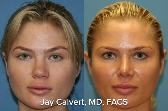 Patient underwent previous rhinoplasty before this secondary rhinoplasty with ear cartilage