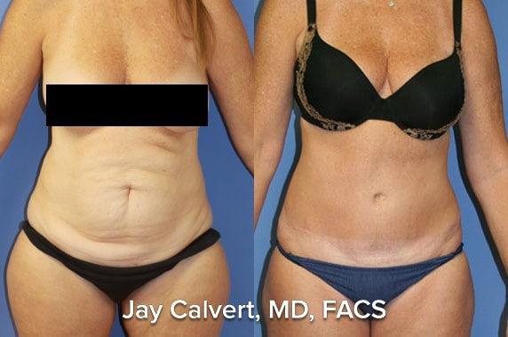 before and after tummy tuck pics