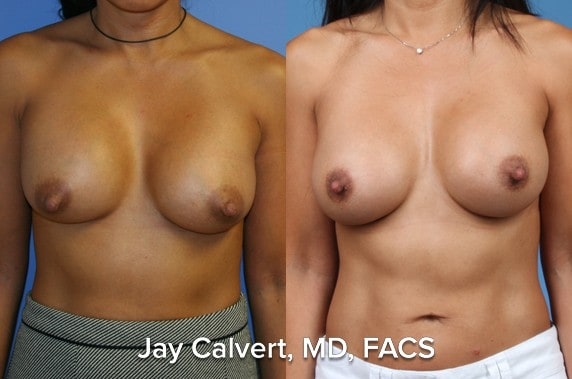 breast reconstruction best results