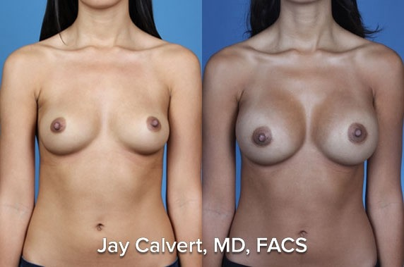breast implant by Dr Jay Calvert in Beverly Hills