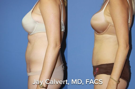 before after tummy tuck pictures