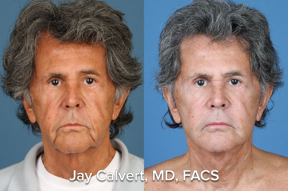 facelift buccal fat removal