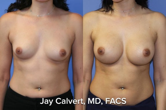 breast implants before and after results