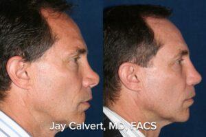 saddle nose, short nose, secondary rhinoplasty, rib graft
