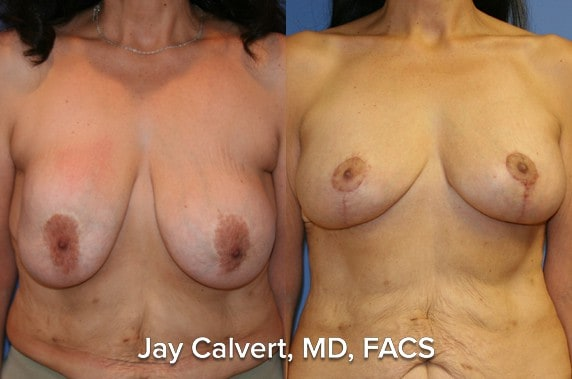 breast lift best results