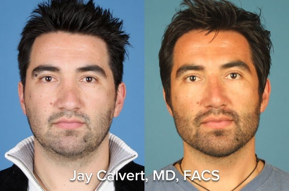 Deviated septum corrected with secondary rhinoplasty and septal reset